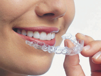 Invisible Braces to create a perfect smile