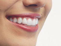 Invisible Orthodontics can create your perfect smile